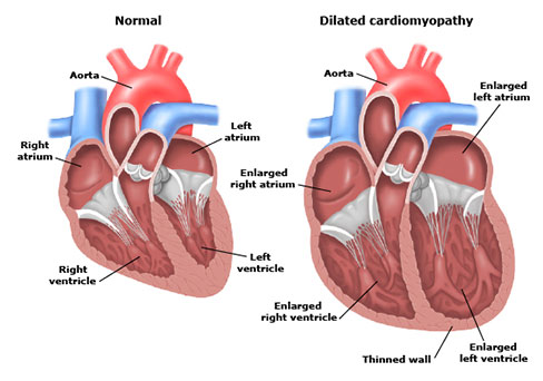 dilated cardiomyopathy - sayed feghali cardiology association, Skeleton
